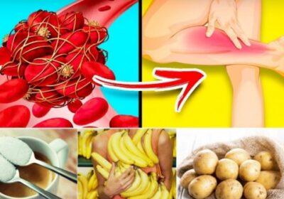 10 коварни продукта, които опасно сгъстяват кръвта и предизвикват тромби – ядем ги ежедневно:
