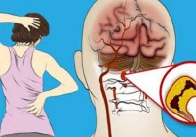 8 болести, които тревожността причинява