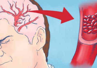 9 сериозни симптома на липса на магнезий и какво да хапваме, за да си го набавим